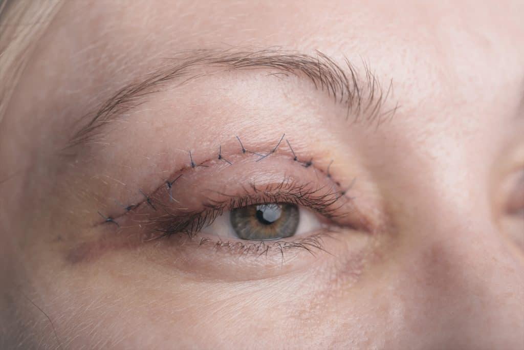 Blepahroplasty Eye Associates of South Texas