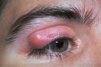Chalazion Eye Associates of South Texas