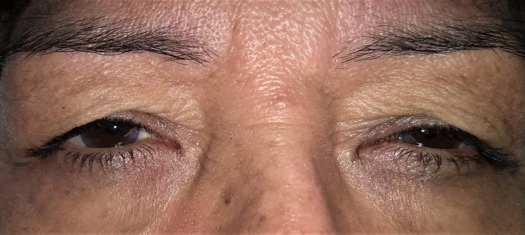 Droopy Eyelids Eye Associaets of South Texas